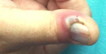 El la rosh a la pose a atopicheskom la dermatitis
